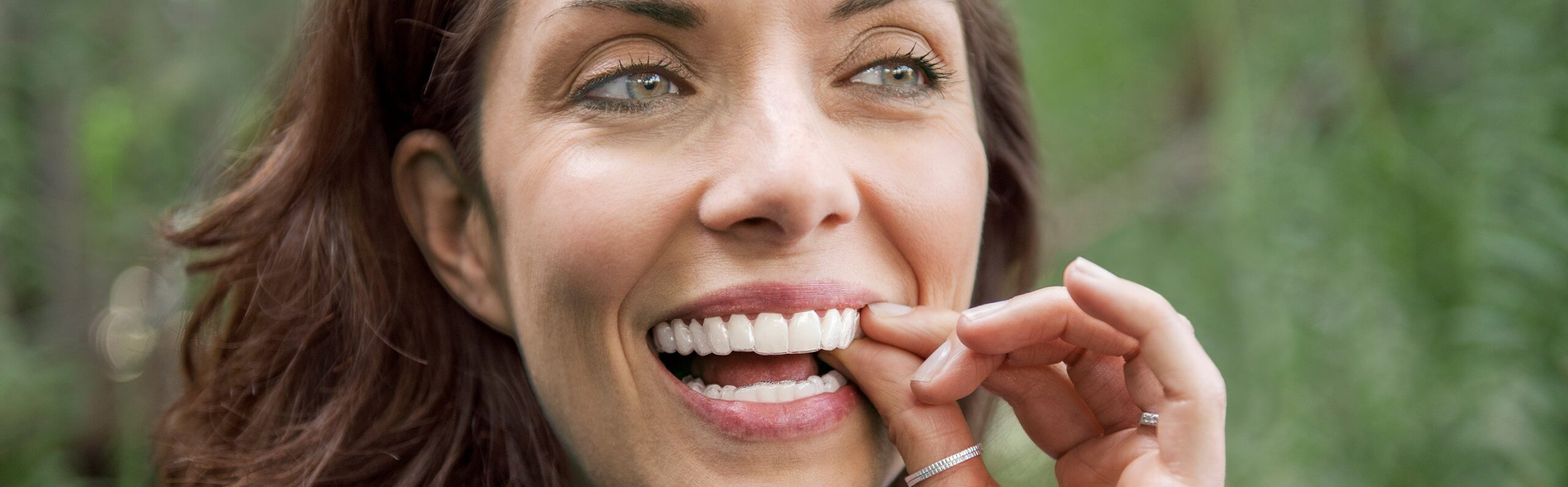 Invisalign Nottingham - Clear Braces | Sherwood Dental Care